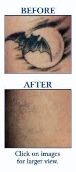 intense pulsed light tattoo removal laser treatments idaho dermatological surgery laser center