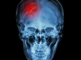 thousands of stroke patients to benefit from u0027game changing u0027 nhs