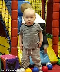 Is Being Blind A Disability Bristol Toddler Harry Studley Shot By Airgun Has Been Left