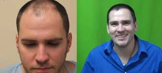 hair transplant america follicular unit extraction for hair transplants with less scarring