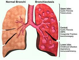 bronchiectasis herbal cure treatment herbs solutions by nature