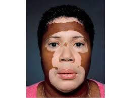 uvb l for vitiligo vitiligo