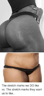 Stretch Marks Meme - the stretch marks we do like vs the stretch marks they want us to