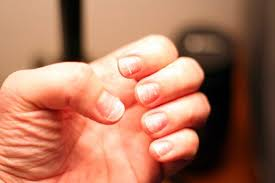 healthy looking fingernails after removing acrylics nails