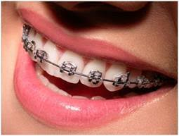 nickel free braces ios