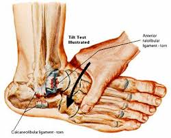 Ankle Ligament Tear Mri Ankle Sprains Orland Park Orthopedics