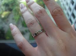 wedding ring dermatitis allergic to wedding ring white gold 28 images im allergic to