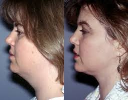 Challenge Around Neck Tumescent Liposuction For Your Neck Liposuction