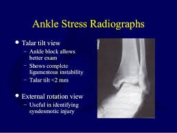 Ankle Ligament Tear Mri L13 Ankle Ligament Injuries