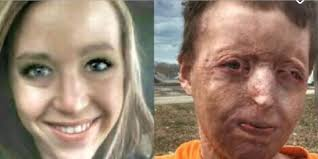 Jessica Mattern by Mom Disfigured By Campfire Accident Then Abandoned By Husband