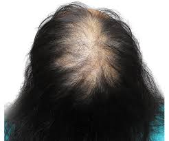 middle aged women thin hair smp for women before after photos scalp micropigmentation
