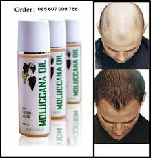 membuat minyak kemiri untuk rambut botak jual penebal rambut tipis penumbuh rambut jarang minyak kemiri asli