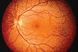Night Blindness Information Fundus Albipunctatus Cause Of Stationary Night Blindness