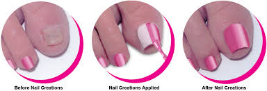 cosmetic answer for toenail loss cleveland com