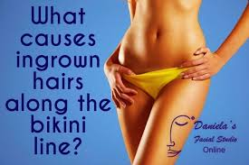 how to remove engrown hair onunderwear line the acne whisperer what causes ingrown hairs