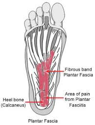 Planters Fasciitis Surgery by Plantar Fasciitis And Bone Spurs Orthoinfo Aaos