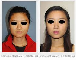Asian Family Plastic Surgery Meme - asian rhinoplasty for wide flat nose bridge and nostrils asian
