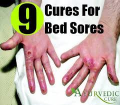 How To Get Rid Of Bed Sores Best And Effective Ways To Cure Bed Sores Naturally Herbal