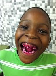 Fat Black Kid Meme - ugly black kids