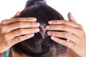 prurito testa e corpo prurito alla testa cuoio capelluto cause e quando diventa