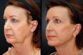 hairstyles that cover face lift scars mini facelift dean p kane md facs lauri p kane mph scd