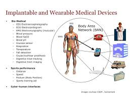 chambre implantable d馭inition chambre implantable d馭inition 100 images pacemaker chambre