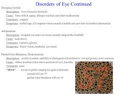 Cause Of Color Blindness Eye Project Austin Petty Travis Byrne Period Ppt Video Online Download