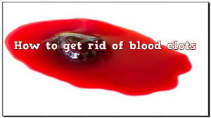 light period with clots how to prevent and get rid of blood clots home remedy youtube