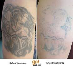 tattoo removal inc before and after 1 session at remove inc laser tattoo removal