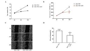 clinical significance and role of lkb1 in gastric cancer
