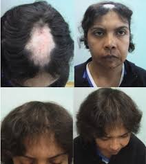 what causes hair loss in women over 50 women and hair transplants عيادة dermhair دبي