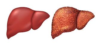 Bad Energy by Energy Drinks Cause Liver Damage