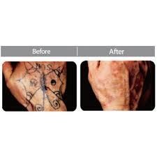 laser tattoo removal consultation