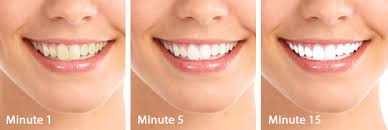 brightwhite smile teeth whitening light best teeth whitening products whitening teeth and makeup