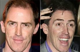 rob brydon hair transplant get the story here his hair clinic