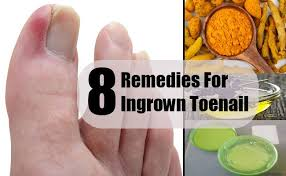 8 home remedies for ingrown toenail search home remedy