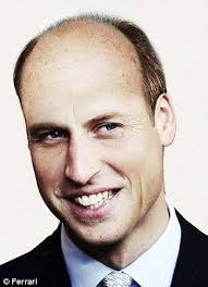 bandage hair shaped pattern baldness 25 best hair loss images on pinterest hair falling out hair