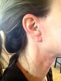 hairstyles that cover face lift scars 42 best mini facelift scars images on pinterest mini face and faces