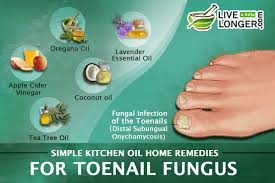 simple kitchen oil home remedies for toenail fungus