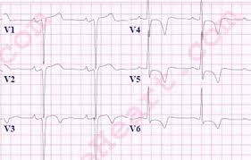 strain pattern ecg meaning left ventricular hypertrophy lvh ecg review criteria and