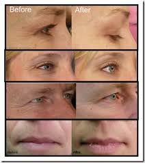 benefits of light therapy does red light therapy work f40 on simple image collection with does