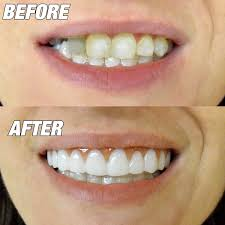 amazon com instant smile comfort flex new one size fits most