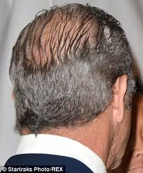 haircuts for crown bald spots mel gibson tries and fails to disguise his large bald patch as he