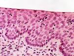 Stratified Squamous <b>Epithelium</b>