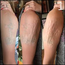 at home acid tattoo removal gone wrong 10 years ago she hadn u0027t