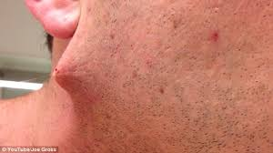 does prids work on ingrown hairs man pulls world s longest ingrown hair out of his face daily