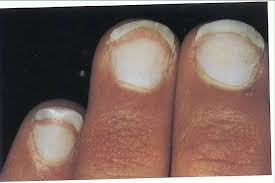 Wide Nail Beds Listen To What Your Nails Tell You Hubpages