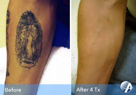 tattoo removal before u0026 after photos from astanza