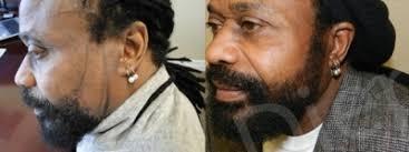 hairline restoration for black men hair transplant photos hair transplant