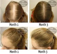 hair weaves for thinning hair will hair extensions help my thinning hair